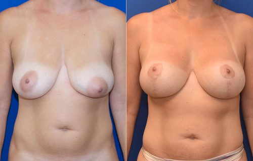 Breast Lift Augmentation Photos | John Park MD Plastic Surgery Orange County CA