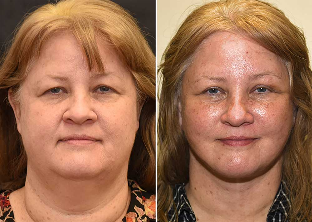 Facelift and Necklift Patient 3, Eyelid and Brow Lift Photos