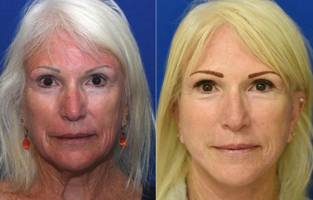 Facellift Necklift Surgery | John Park MD Plastic Surgery Orange County CA