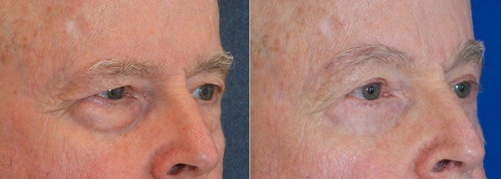Upper Eyelids Surgery   John Park MD Plastic Surgery Orange County CA