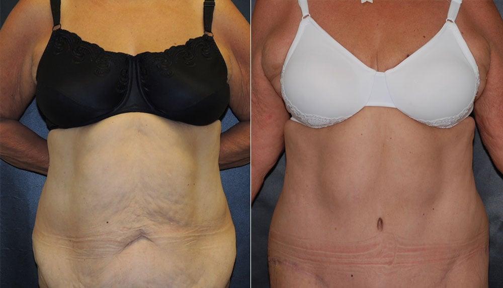 Tummy Tuck Abdominoplasty Photos | John Park MD Plastic Surgery Orange County CA