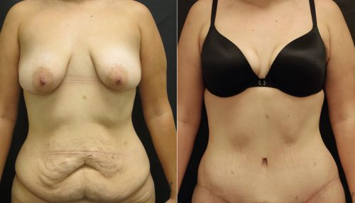 Tummy Tuck Abdominoplasty Photos | John Park MD Plastic Surgery Orange County CA