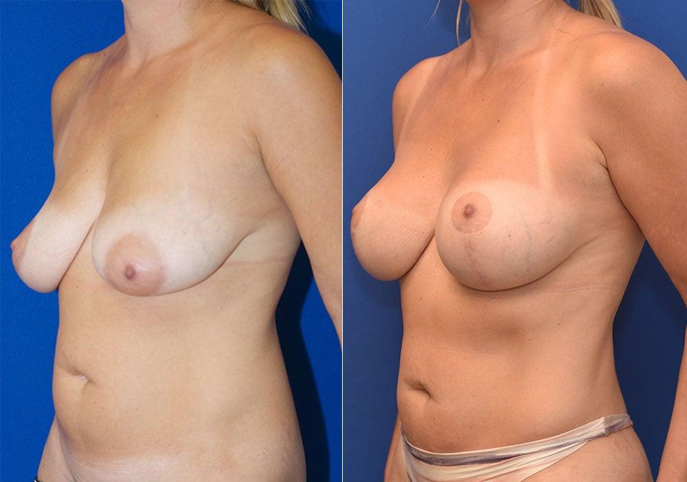 Breast Lift Augmentation Photos | John Park MD Plastic Surgery Orange County CA