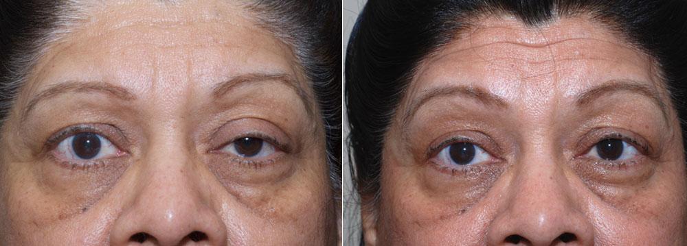 Ptosis Repair Upper Eyelids | John Park MD Plastic Surgery Orange County CA
