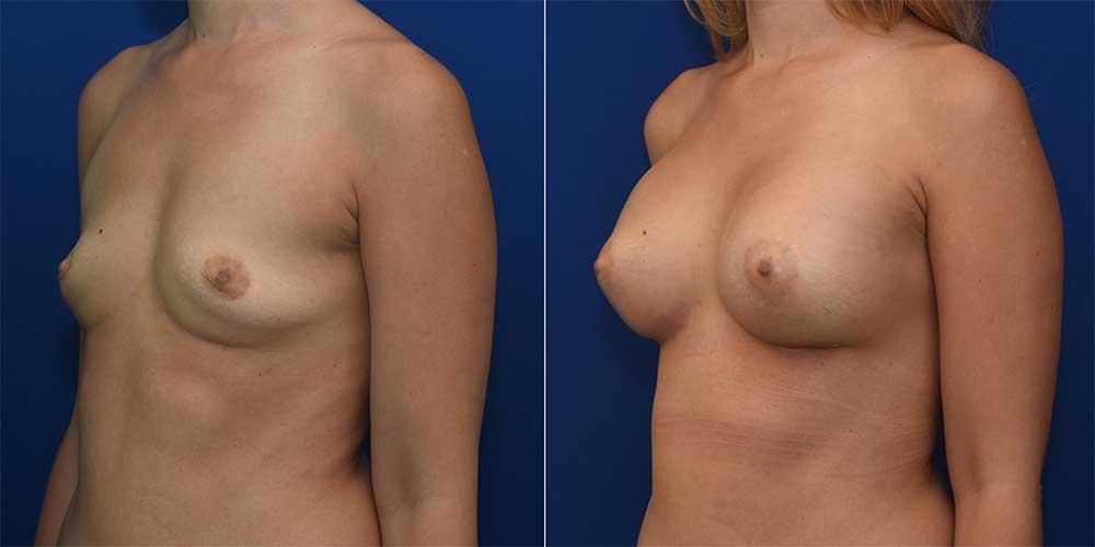 Breast Augmentation Patient 3   John Park MD Plastic Surgery