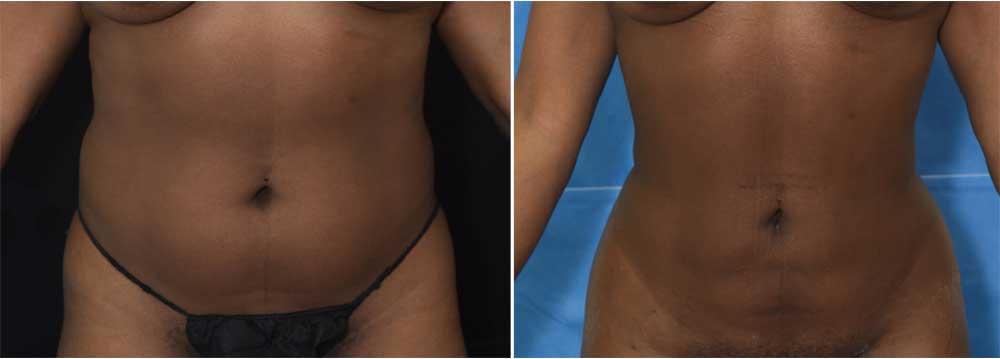 Brazilian Butt Lift | John Park MD Plastic Surgery, Irvine, CA