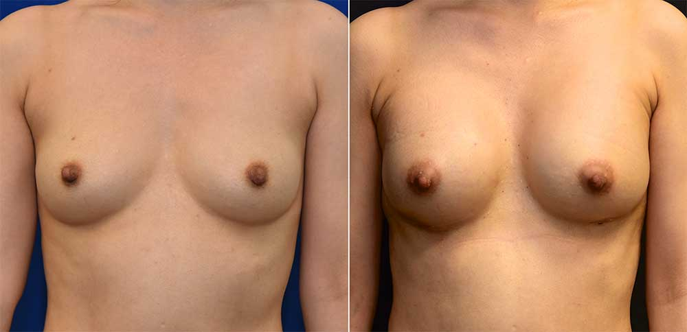 Breast Augmentation Patient 4 | John Park MD Plastic Surgery
