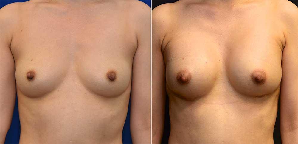 Breast Augmentation Patient 4 | John Park MD Plastic Surgery