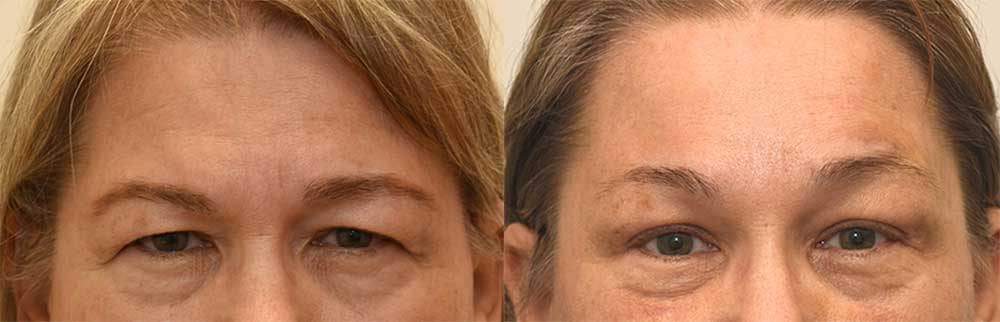 Brow Lift Patient 2 Photos | John Park MD Plastic Surgery, Irvine